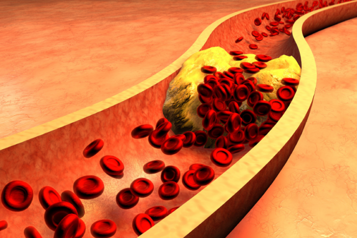 thesis on hyperlipidemia Hyperlipidemia can run in families people who inherit the condition can get very high cholesterol  that means they have a much greater chance of having a heart attack , even when they're young.