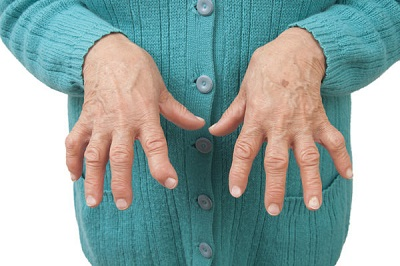 A Painful Disease called Gout